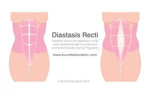 Diastasis-Recti-1